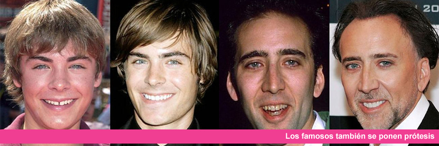 famosos con protesis dentales