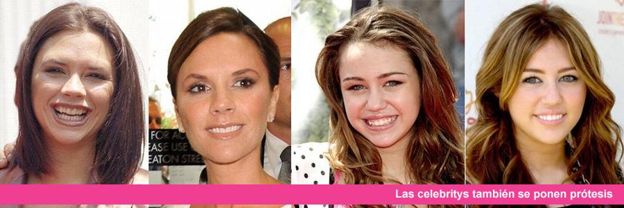 famosas con implantes dentales