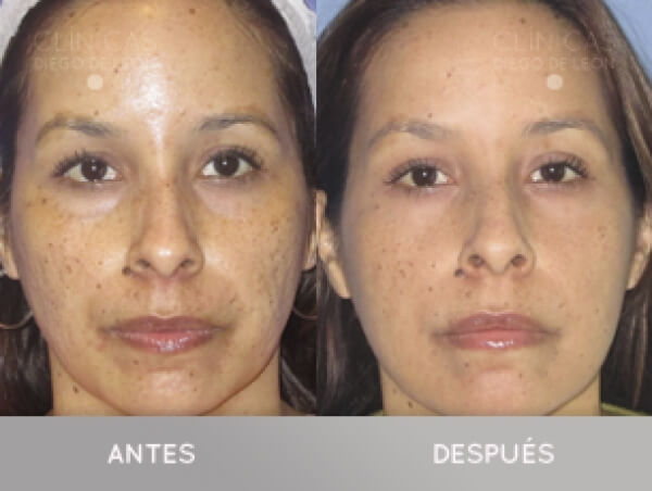 Elimina las marcas del acné desde 250€ sesión