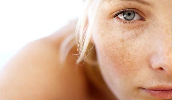 Hiperpigmentación ( Juventud y Belleza )