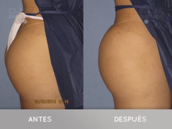 AUMENTO DE GLÚTEOS SIN CIRUGÍA 2.800 €