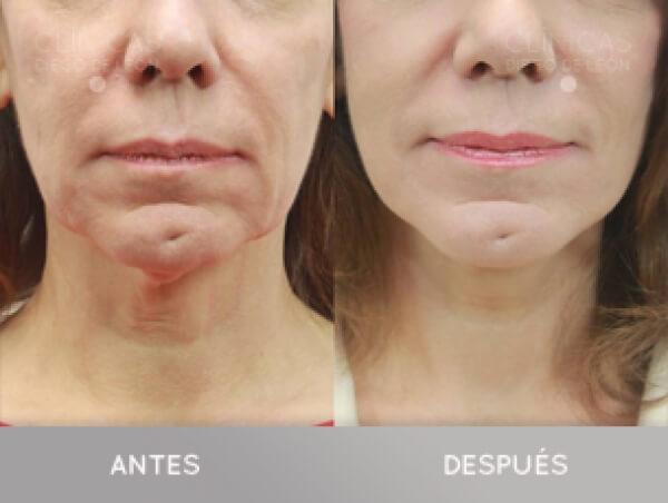 LIPOFILLING FACIAL: utiliza tu propia grasa para rejuvenecer tu rostro en TodoEstetica.com