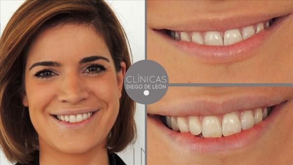 Relleno y perfilado de labios 199 € en TodoEstetica.com