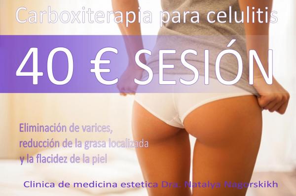 CARBOXITERAPIA a partir de 40€ en TodoEstetica.com