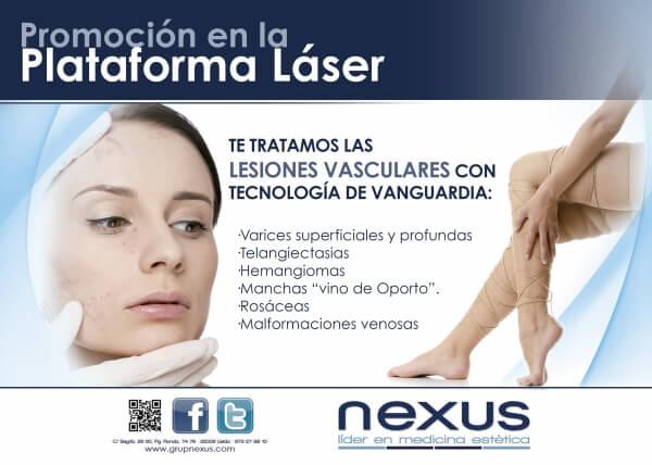 Tratamiento de lesiones vasculares en TodoEstetica.com