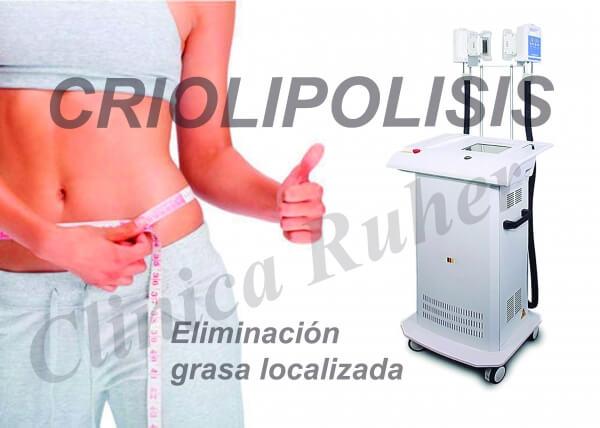 SESION SIMPLE DE CRIOLIPOLISIS ABDOMEN 98 €