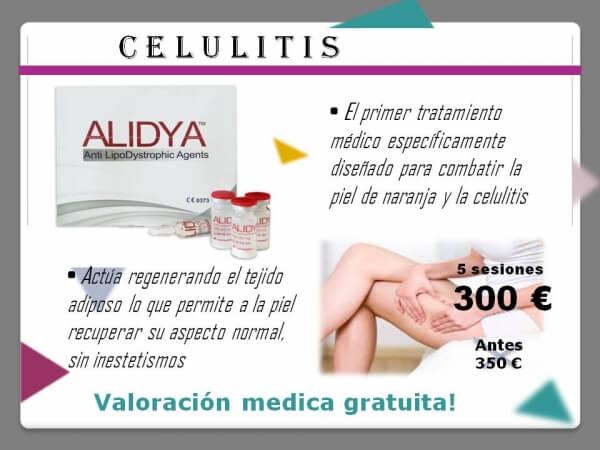 Nuevo tratamiento anticelulitico - Alidya
