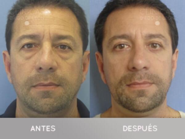 Blefaroplastia desde 1.190 € TODO INCLUIDO en TodoEstetica.com