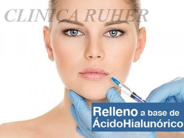 RELLENO DE ACIDO HIALURONICO (LABIOS POMULOS SURCOS.........) 350 €