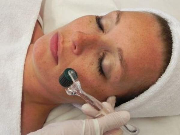 Roller dermatológico o Dermapen - acné, manchas, cicatrices, arrugas en TodoEstetica.com