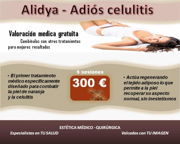 Alidya - Adi�s celulitis
