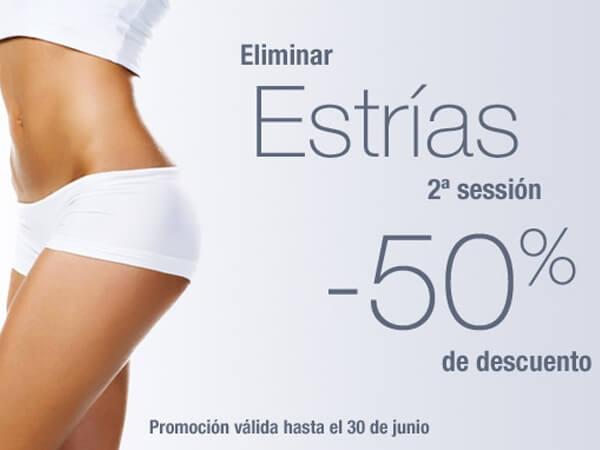 Eliminación de estrías. 2ª Sesión 50% Descuento en TodoEstetica.com
