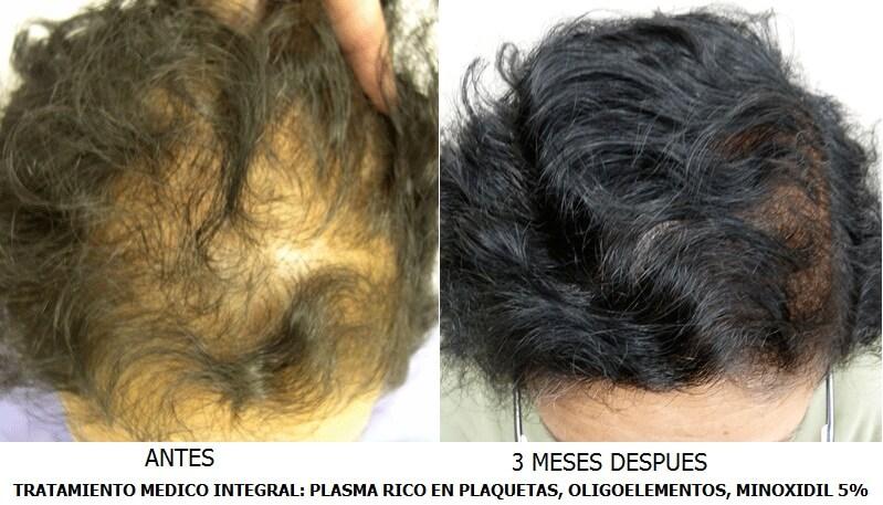 PLASMA RICO EN PLAQUETAS - FACTORES DE CRECIMIENTO en TodoEstetica.com