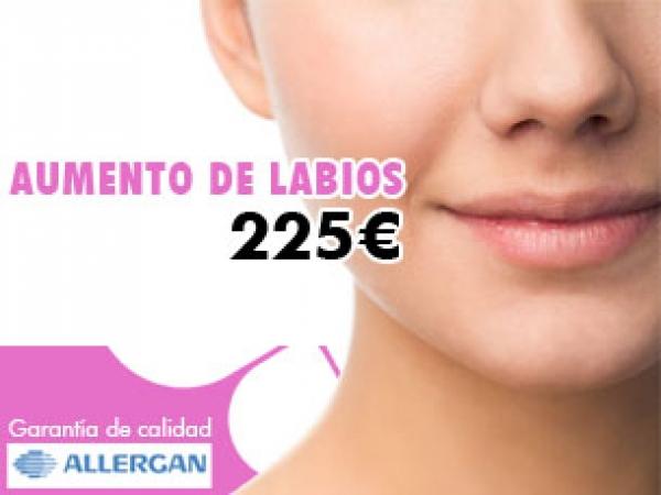 AUMENTO DE LABIOS POR 225€ en TodoEstetica.com