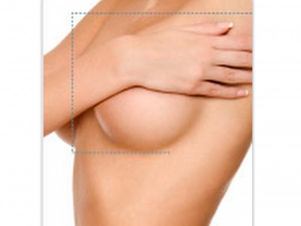 Aumento de mamas 550.-€ descuento