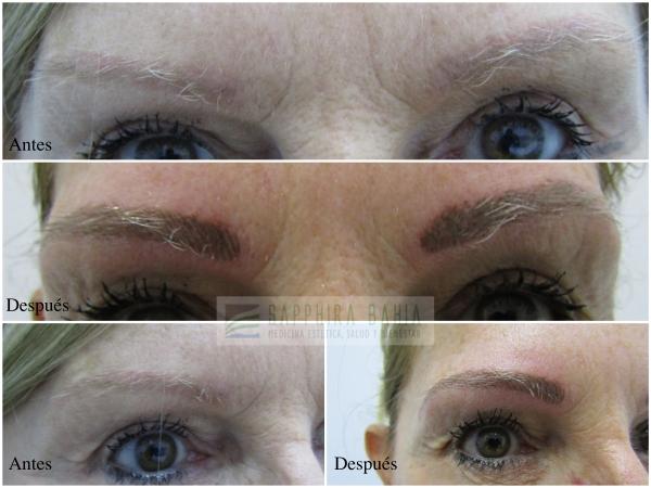 """Test de Alergia Micropigmentación """"pelo a pelo""""/perfilado de labios Retoque pigmentación  Todo por sólo 260€ en TodoEstetica.com"""