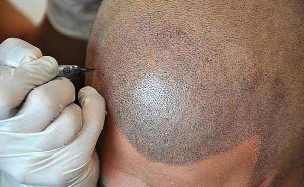 Micropigmentación médica Capilar - Cejas - Labios - Linea del ojo - Areola Mamaria - Vitíligo - Cicatrices - Desde 250€ en TodoEstetica.com