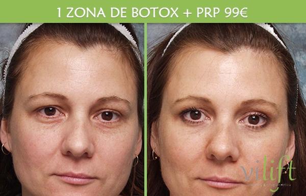 ZONA DE BOTOX + PLASMA RICO EN PLAQUETAS 99€ en TodoEstetica.com