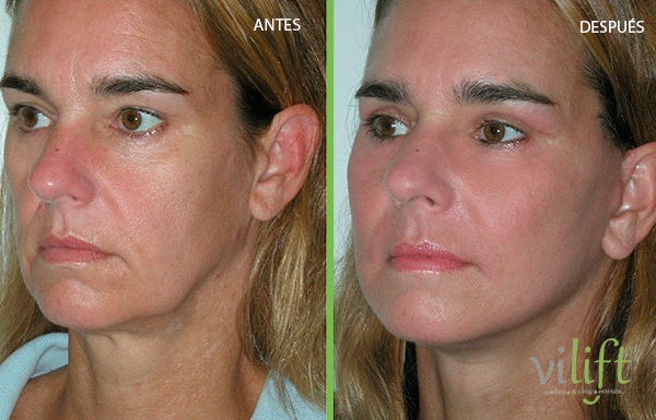 Rejuvenecimiento Facial Completo sin Cirugía Deluxe en TodoEstetica.com