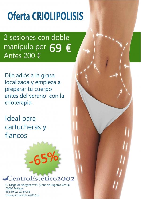 Oferta criolipolisis -65% en TodoEstetica.com