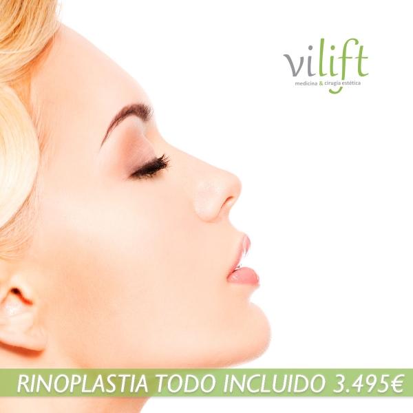 RINOPLASTIA CON TODO INCLUIDO 3.495€