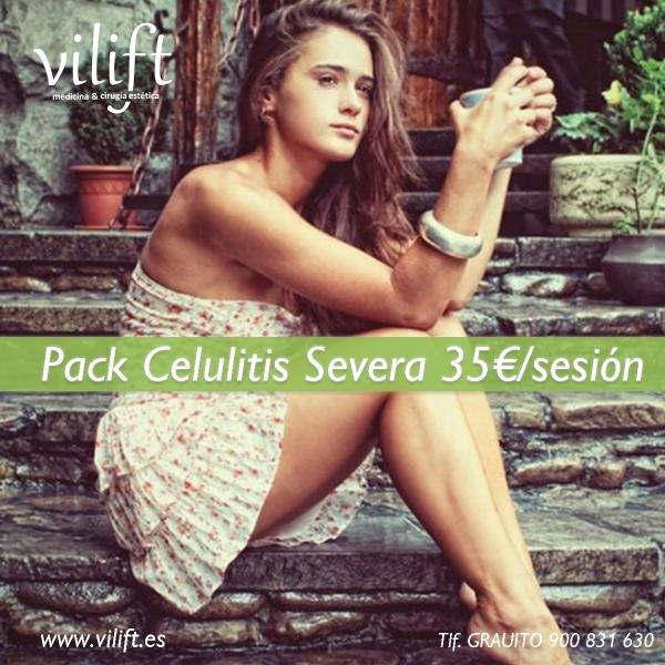 Pack Celulitis Severa 35€/sesión  en TodoEstetica.com