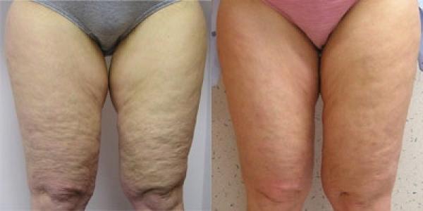 Mesoterapia corporal elemina la celulitis 1 sesión 35€ bono 10 sesiones 199€ promoción hasta 30 abril  en TodoEstetica.com