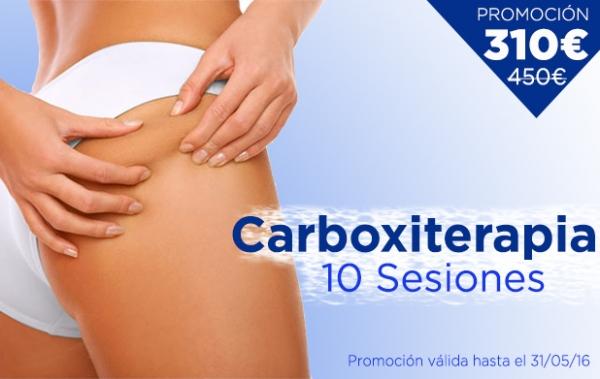 Promoción Carboxiterapia: 10 Sesiones: 310€