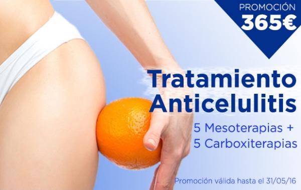Promoción Tratamiento Anticelulitis