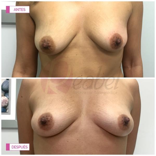 Oferta tratamiento Reafirmante de busto ( mastopexia sin cirugía)