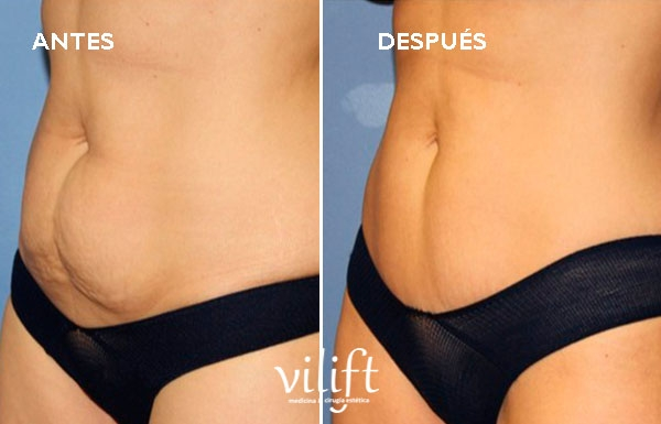MINI ABDOMINOPLASTIA 3.895€