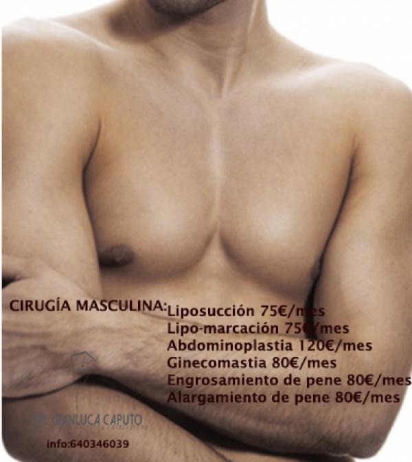 CIRUGÍA MASCULINA en TodoEstetica.com