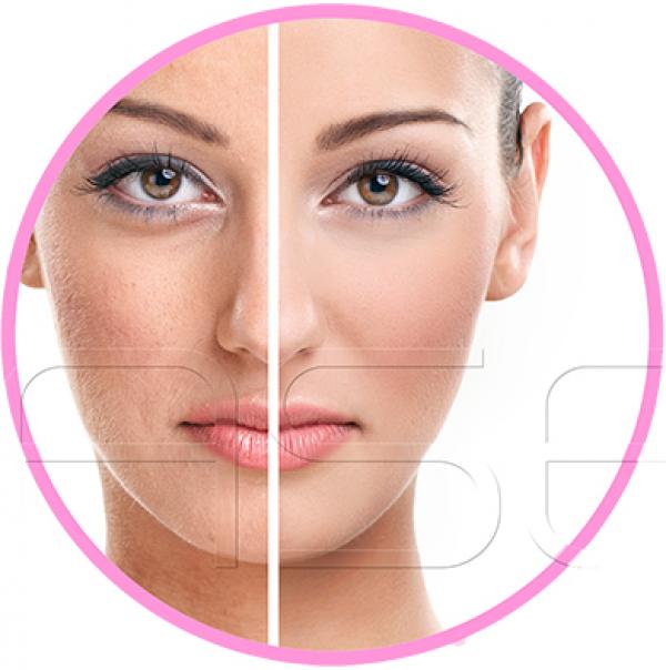 Plasma PRP para luminosidad y rejuvenecimiento facial 99€