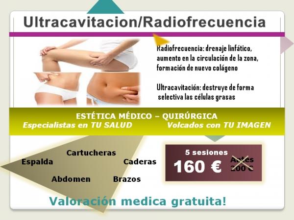 Ultracavitación/ Radiofrecuencia