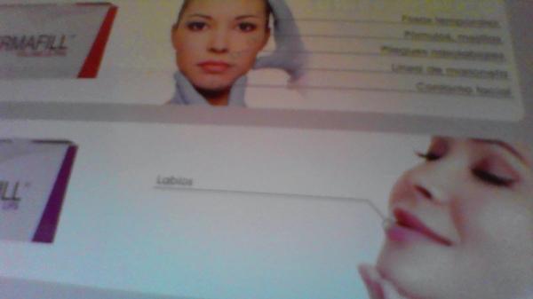 Rellenos de arrugas con infiltraciones de hialurónico , 20%. AHORA 360€ VÍAL