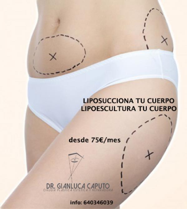 Lipoescultura tu cuerpo 75€/mes