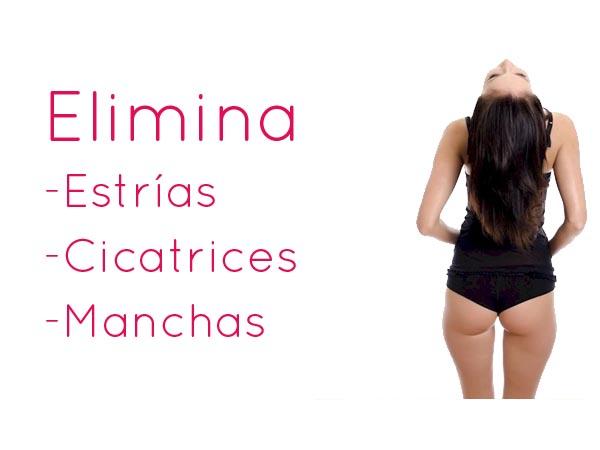 Elimina tus cicatrices, estrías y manchas en TodoEstetica.com