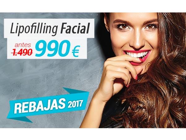 REBAJAS: Lipofilling facial