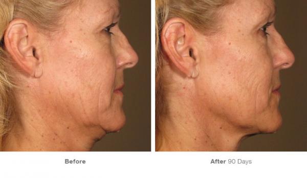 Lifting facial sin cirugia HIFU Ultraterapia en TodoEstetica.com