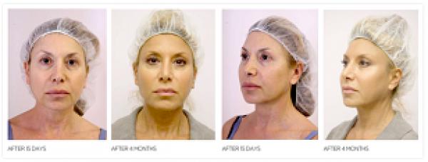 Lifting Facial sin cirugía - Lifting Líquido.