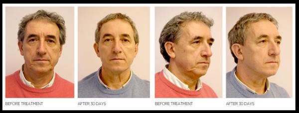 Lifting Facial sin cirugía - Lifting Líquido. en TodoEstetica.com