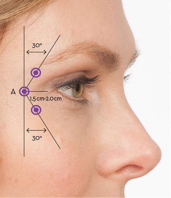 Arrugas en Frente y Patas Gallo - Toxina Botulínica Tipo A.