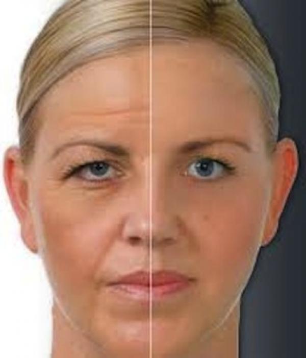 €300. Botox 3 zonas para Mejoria de las Arrugas de Expresión