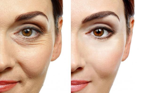 Rejuvenecimiento facial por 250€ en TodoEstetica.com