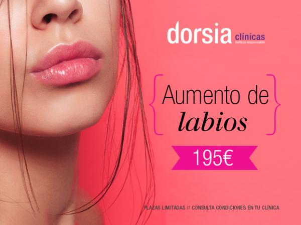 Aumento de labios 195€