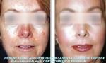 Area médica de rejuvenecimiento Periocular con Laser en TodoEstetica.com