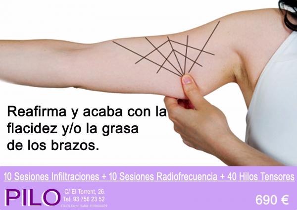 Promo reafirmación y reducción brazos: 10 Sesiones Infiltraciones + 10 Sesiones Radiofrecuencia + 40 Hilos Tensores: 690€