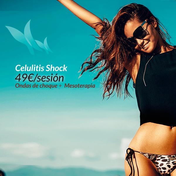 Celulitis shock 49€/sesión  en TodoEstetica.com