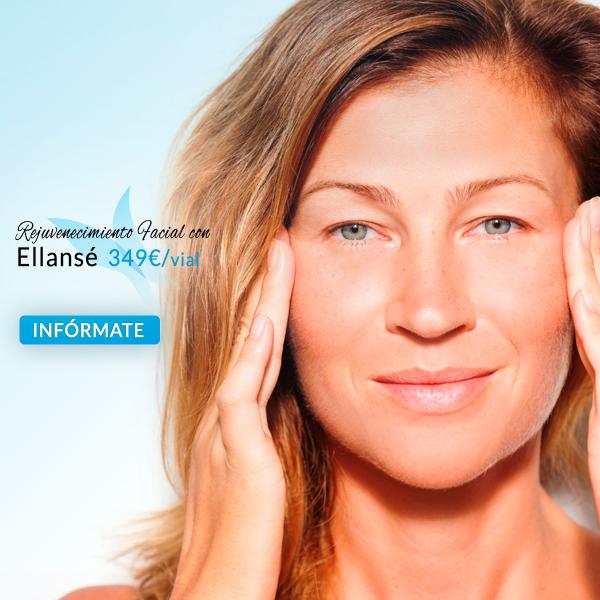 Rejuvenecimiento Facial con Ellansé 349€/vial en TodoEstetica.com