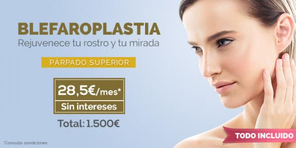 Recupera una mirada joven con la blefaroplastia en TodoEstetica.com
